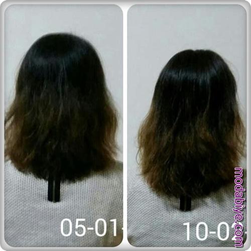 Bemiks ampul ve sinameki otu ile saç uzatma