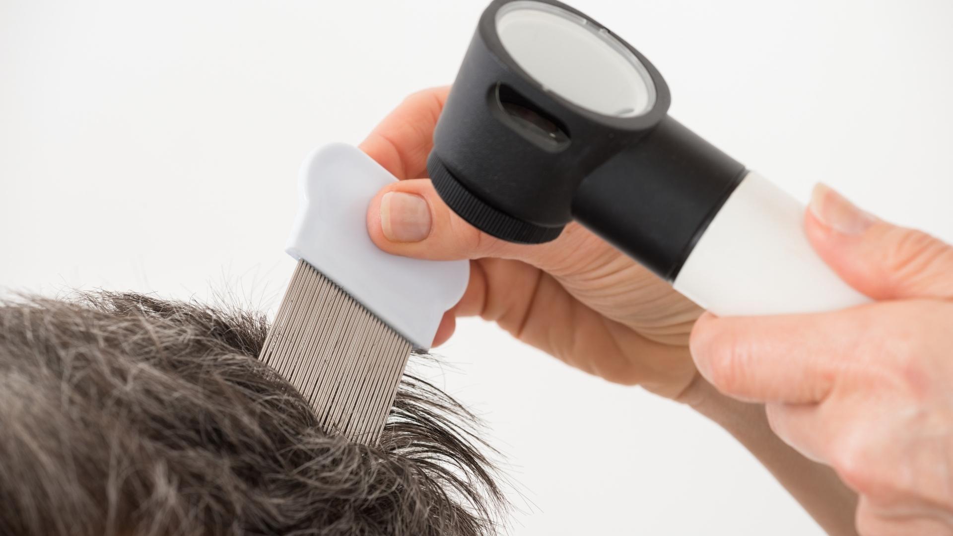 Saç Analizi Nasıl Yapılır?